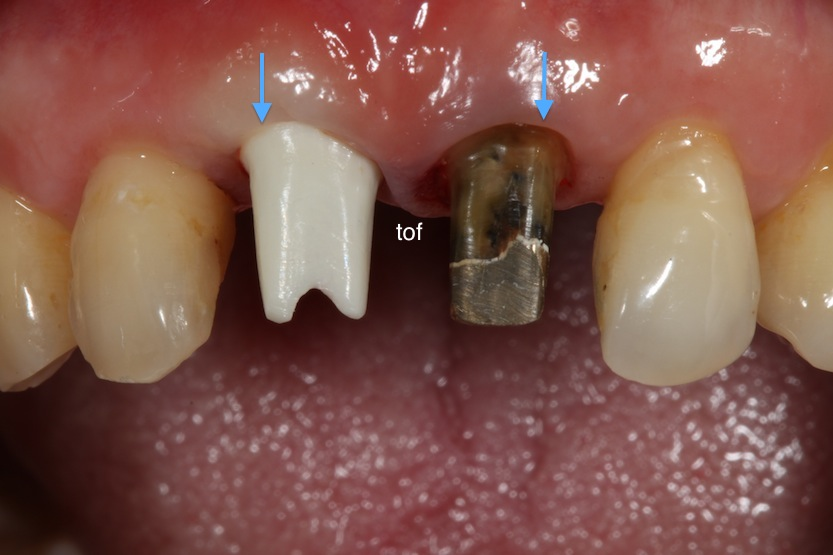 Zirconia abutment intraoral frontal