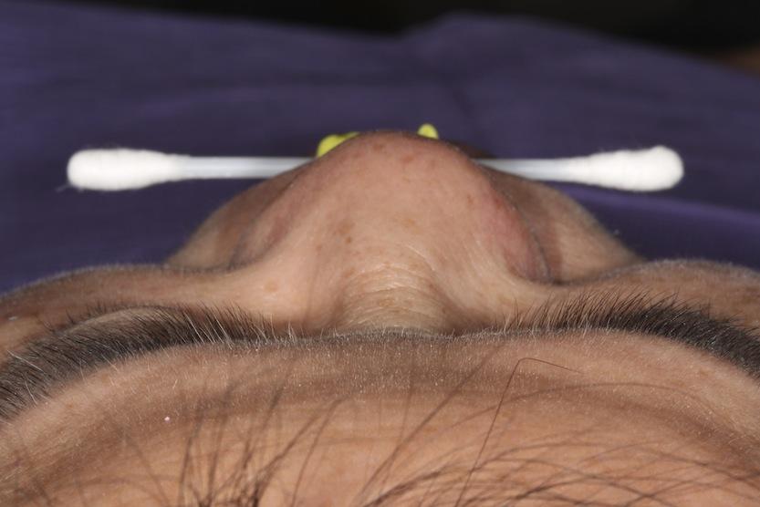 Horizontal plaen sagittal