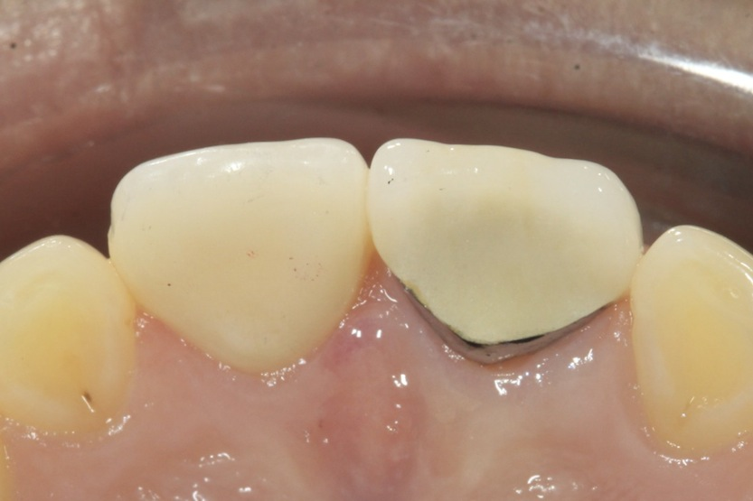 Palatal view A