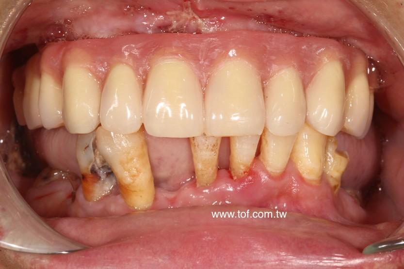 All on 4 zygoma immediate denture