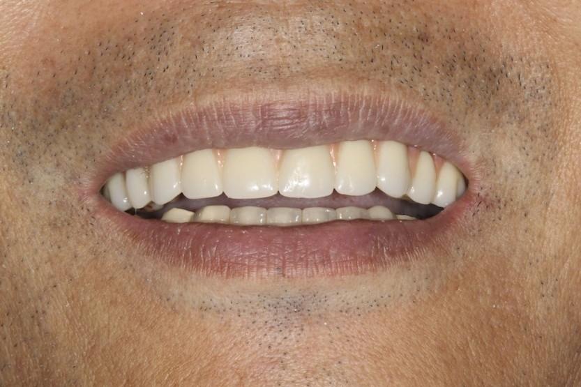 Reverse smile arc
