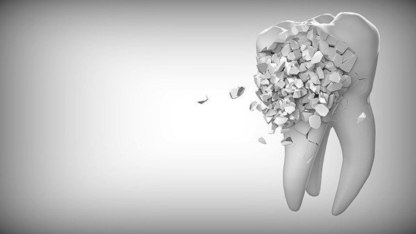 Tooth 2874551 640