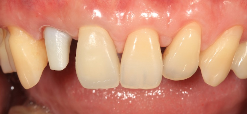 Another case frontal