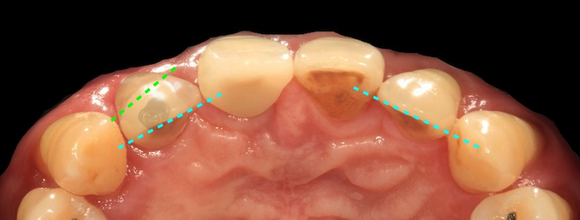 Another case occlusal 008
